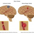 thumbnail of Brain stroke