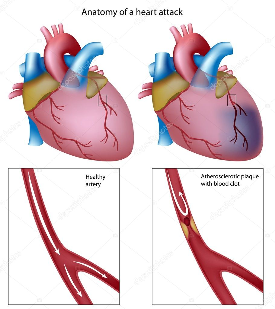 Anatomy of heart attack, eps8 — Imagen vectorial #5789032