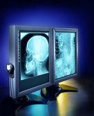 X-rays on computer screen — Stock Photo