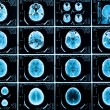Scans of the brain - Stock Photo