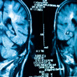 Closeup of a CT scan with brain — Stock Photo