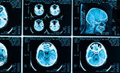 Many type of brain scans with dark background — Stock Photo