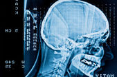 Closeup of a CT scan with brain and skull on it — Stock Photo