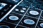 Several CT computer tomography scan images of the brain — Stock Photo