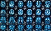 Sharp Texture of a human brain in ct — Stock Photo