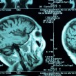 Ct scan of the human brain tile - Stock Photo