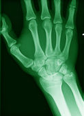 X-ray of an hand — Stock Photo