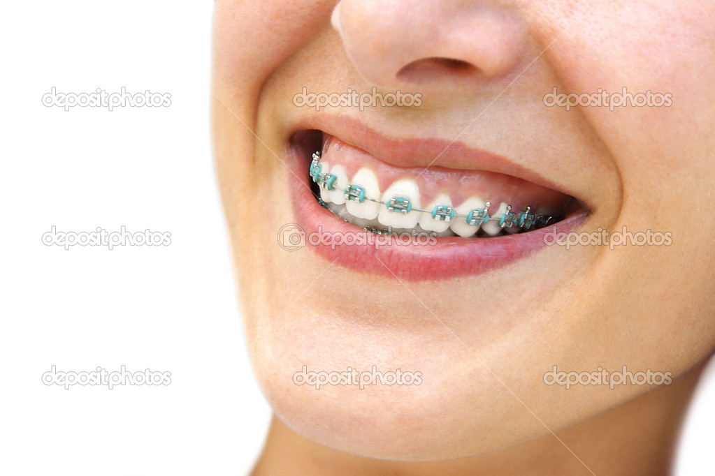 Detail of young womans smile showing white teeth with braces. — Stock Photo #5874371
