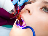 Dentist technology — Stock Photo