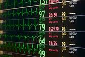 Intensive care unit monitor — Stock Photo