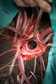 Prosthetic heart valve implantation — Stockfoto