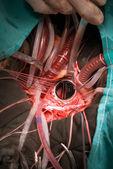 Protetické srdce ventil implantace — Stock fotografie
