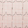 Cardiogram close-up - Foto Stock