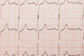 Cardiogram close-up — Foto de Stock