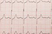 Primer plano cardiograma — Foto de Stock