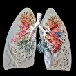 Stock Photo: A Lungs