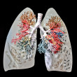 A Lungs — Stock Photo