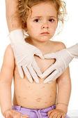 Menina triste com varíola nos médicos — Foto Stock