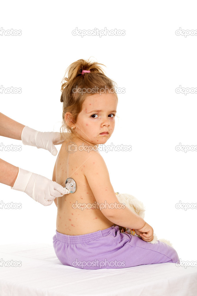 Little girl with small pox at the doctors examination - isolated healthcare concept  Stock Photo #6411108