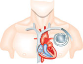 Pacemaker — Stock Photo