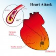 Heart attack — Stock Vector #6487214