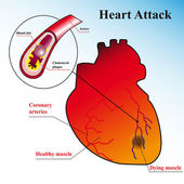 Heart attack — Stock Vector