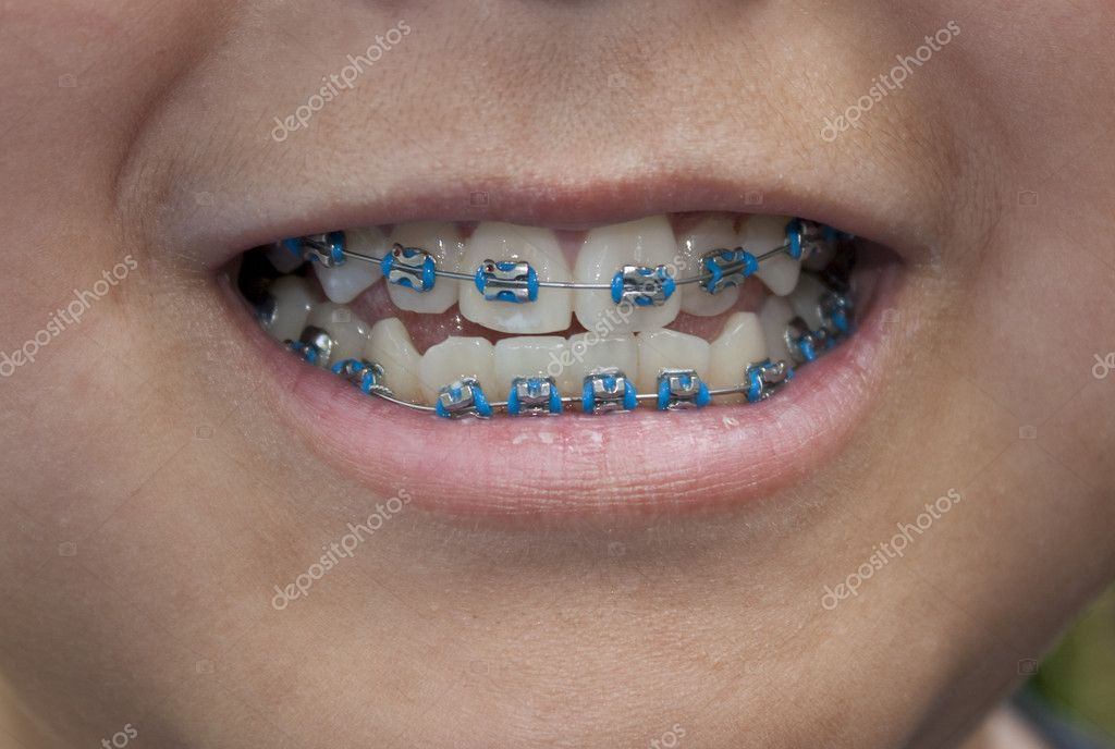 Close-up of a young boy with blue braces — Stock Photo #6534159