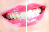 Dental Whitening — Foto Stock