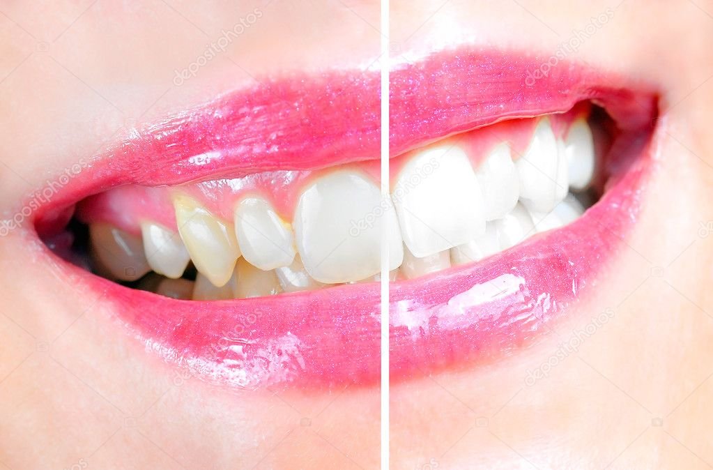 Before and after of a dental whitening procedure — Stock Photo #6582873