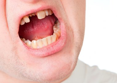 Young man face with broken tooth