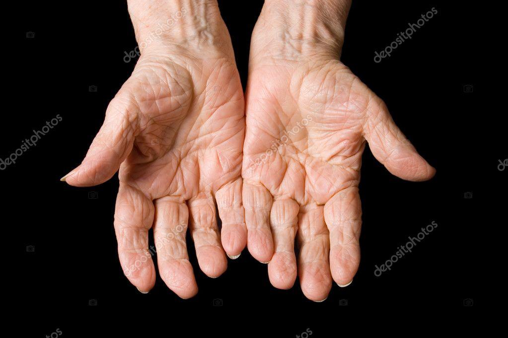 антистатические показатели руки как у старухи что делать средство для суставов