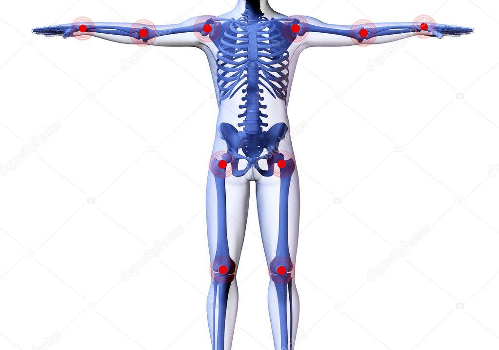 Skelett des Mannes mit den Ortsteilen Schmerzen der Gelenke ...