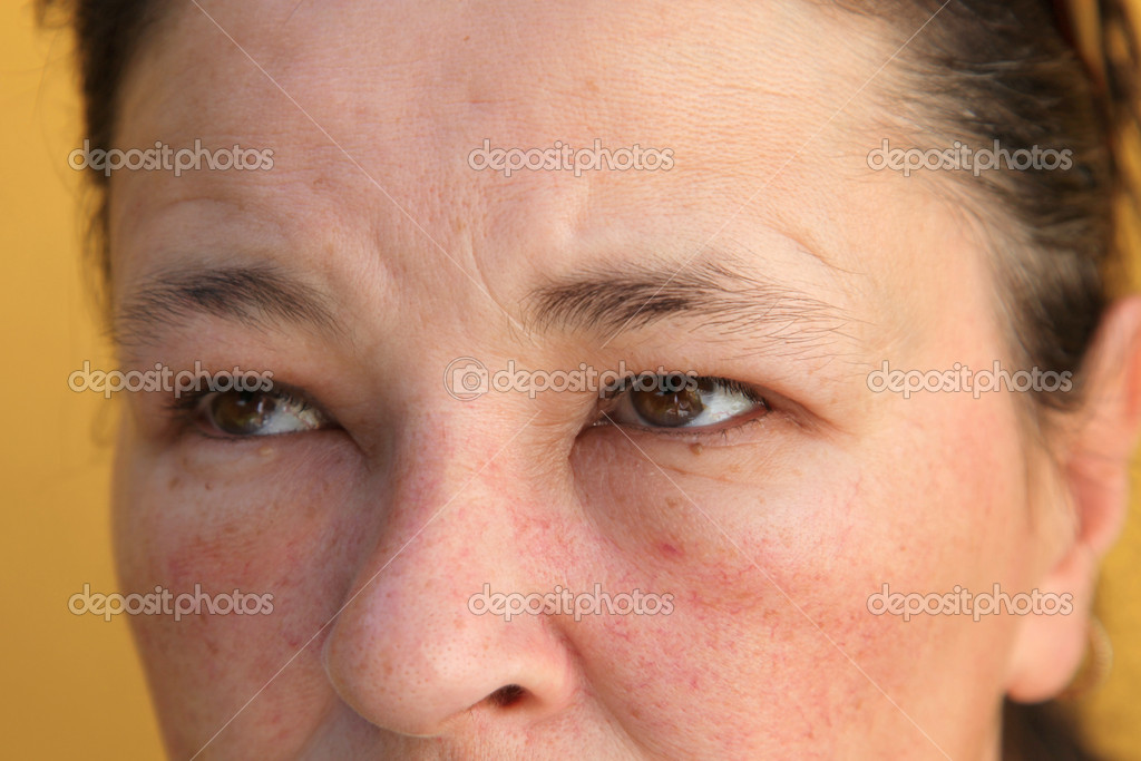 allergie in het gezicht