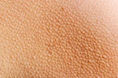 Goosebumps Skin Background