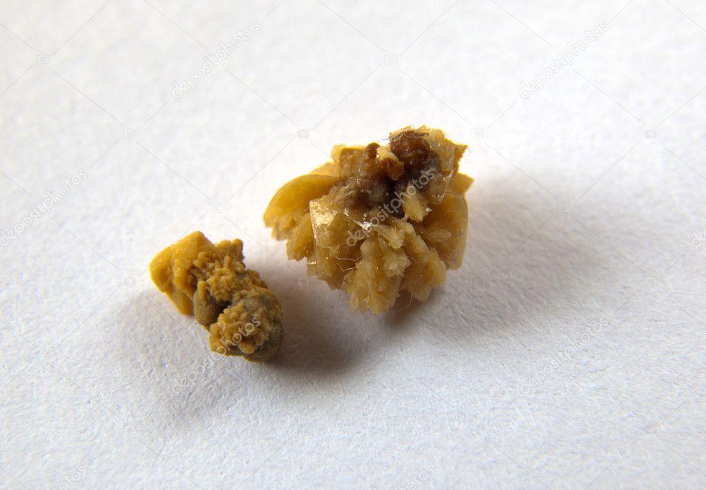 Лечение оксалатных камней в почках: диета и