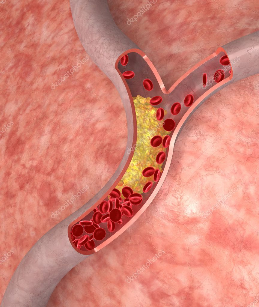 Cholesterol in artery