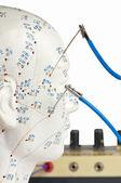 elektrické akupunktura