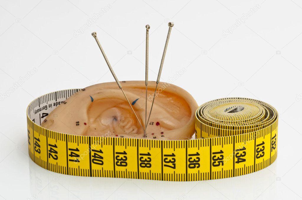 Иглоукалывание похудение иркутск