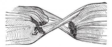 Torn Muscle Fiber, vintage engraved illustration