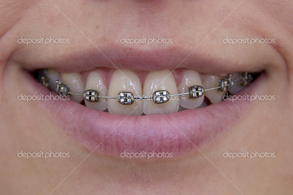 Smiling girl with brackets on her teeth