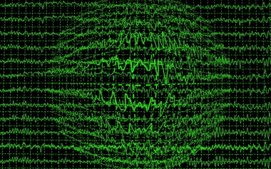 Brain wave encephalogramme EEG isolated on black background