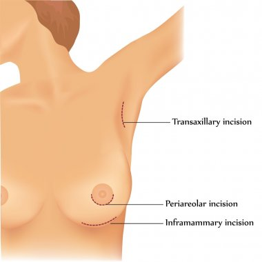 Plastic surgery of breast implants