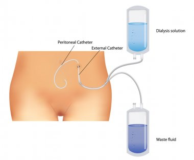 Peritoneal dialysis. Renal insufficiency.