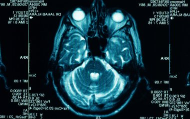 Sharp ct scan of the human brain