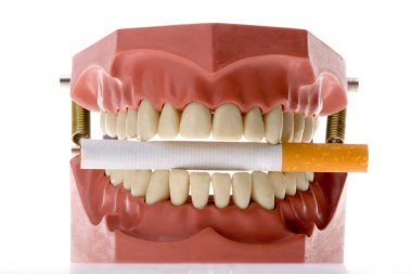 Dental mold biting a cigarette
