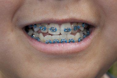Close-up of braces