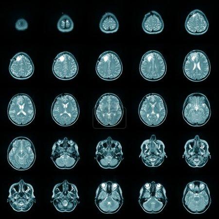 Magnetic risonance image MRI of a human brain