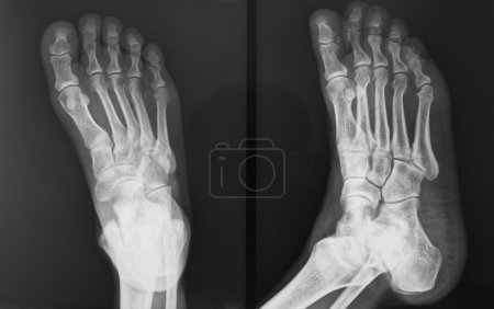 The injured foot of X-ray figure