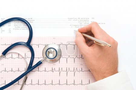 Photo for Doctor write note on electrocardiogram (ECG) output, part of stethoscope - heart checkup concept - Royalty Free Image