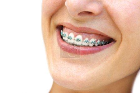 Photo pour Détail de womans jeune sourire, montrant les dents blanches avec bretelles. - image libre de droit
